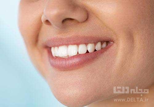 رنگ دندان ها