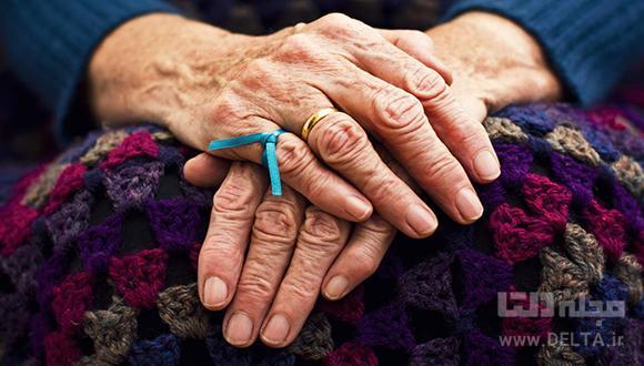 پیشگیری از آلزایمر ؛ خداحافظ فراموشی