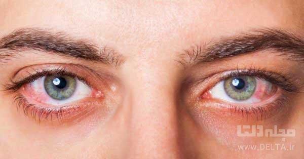 خشكي-چشم