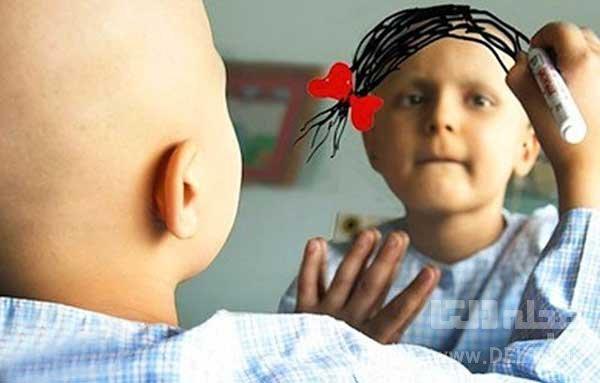 علت سرطان خون