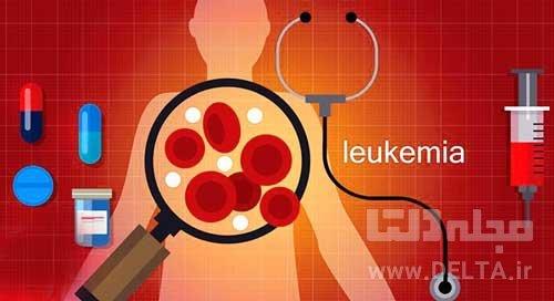 سرطان خون ( لوسمي )