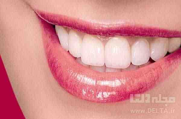سفيد كردن دندان