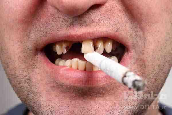 سفيد كردن دندان در خانه