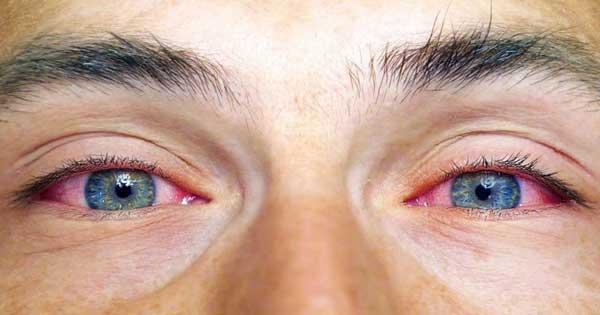 علائم سكته چشمي