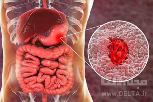 درمان-كوليت-روده