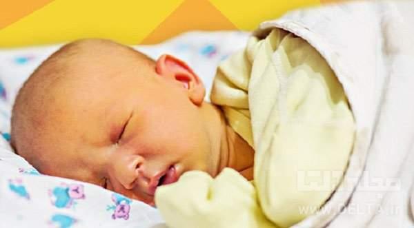 علت زردی نوزاد