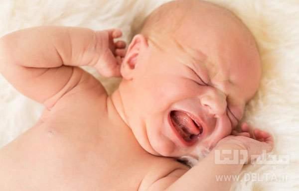 درمان زردی کودک و نوزاد