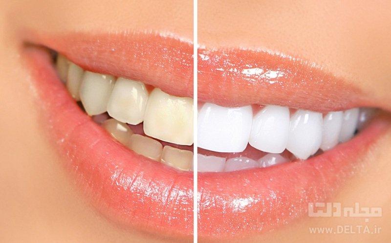 زردي دندان