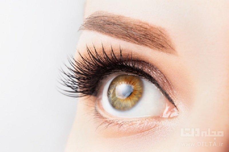 درمان نزدیک بینی