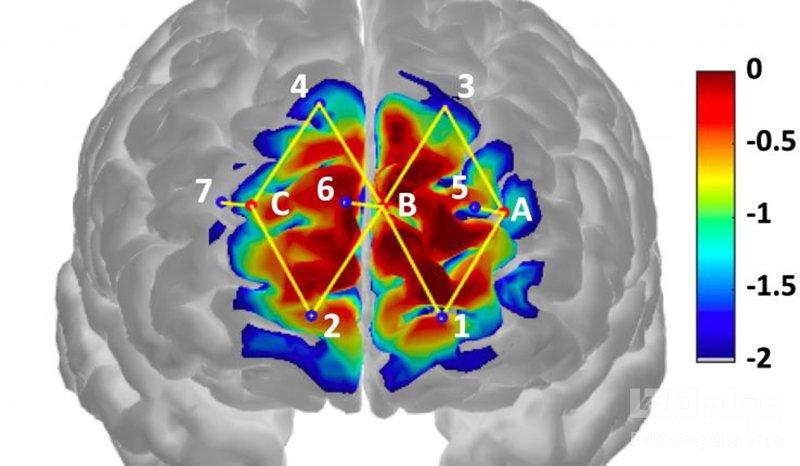 حسگرهای شناسایی فعالیت شیمیایی مغز
