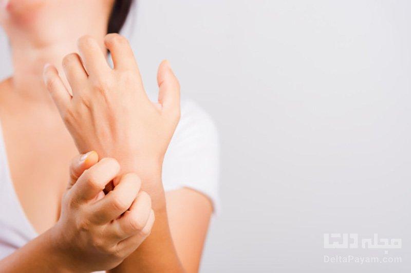 درمان خارش کف دست