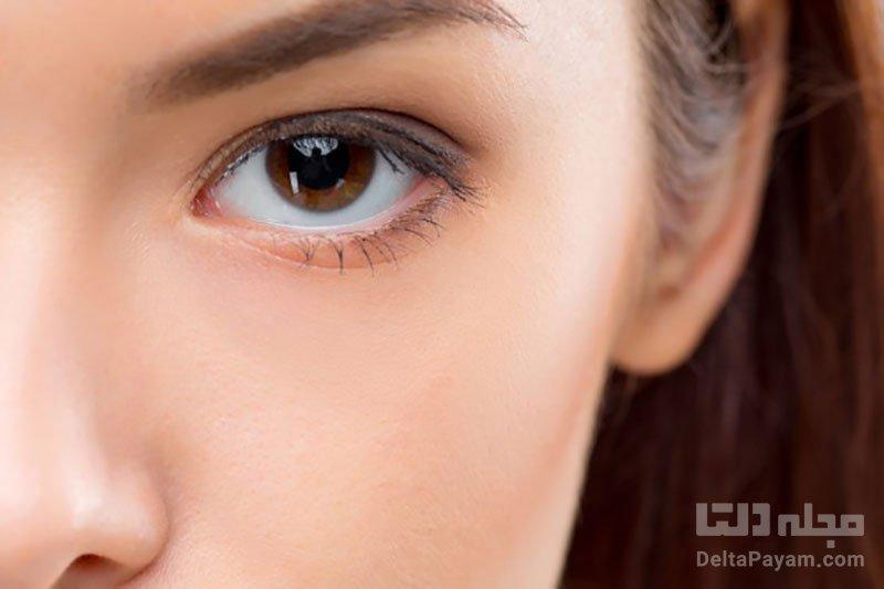 علل خشکی چشم