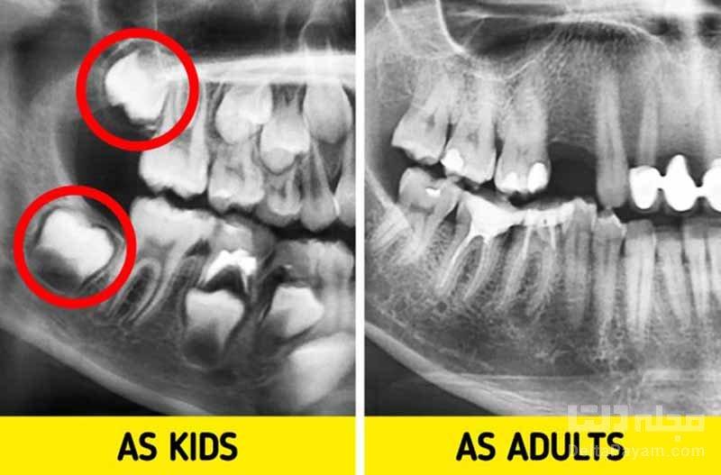 تکامل بدن انسان دندان عقل