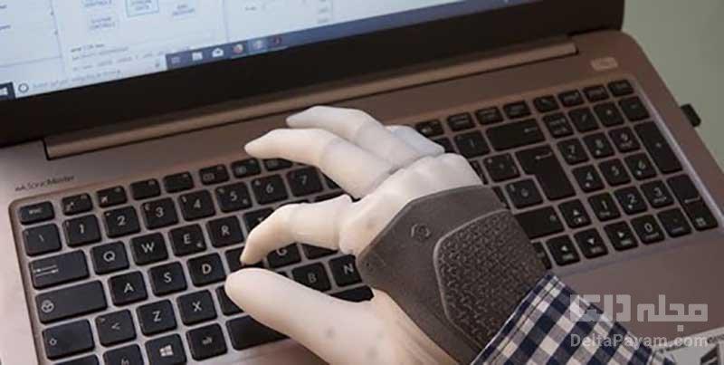 دست مصنوعی با قدرت لامسه