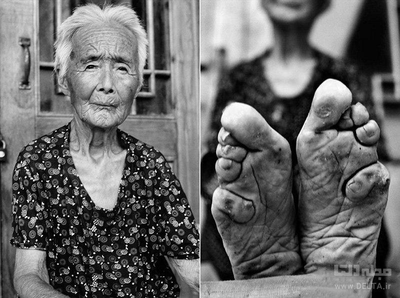 بستن پاها در چین