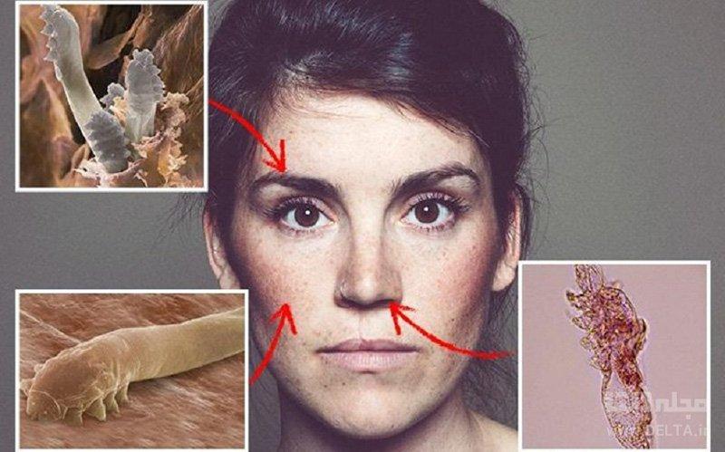 میکروبهای بینی و دهان