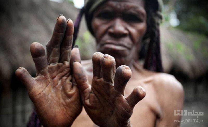 قطع انگشتان دست